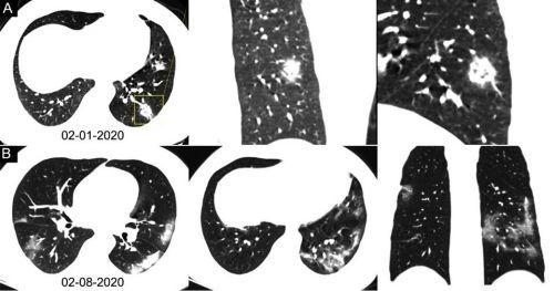 При отсутствии тестов на SARS-CoV-2 радиологически можно диагностировать COVID-19 на ранних стадиях пневмонии